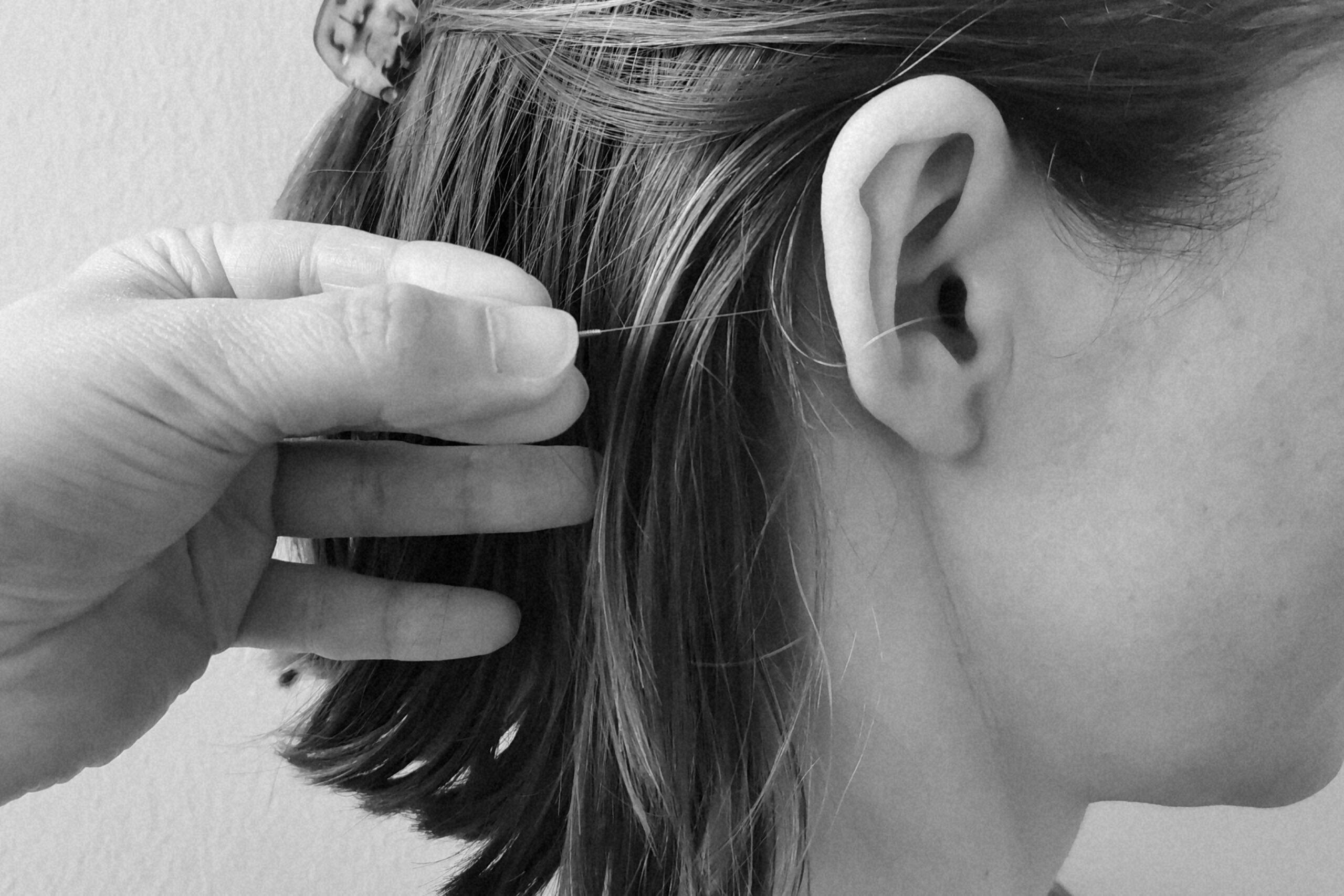 Øreakupunktur og zoneterapi i hjertet af Aalborg